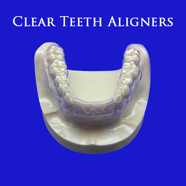 clear-aligners-take-impression-page-1