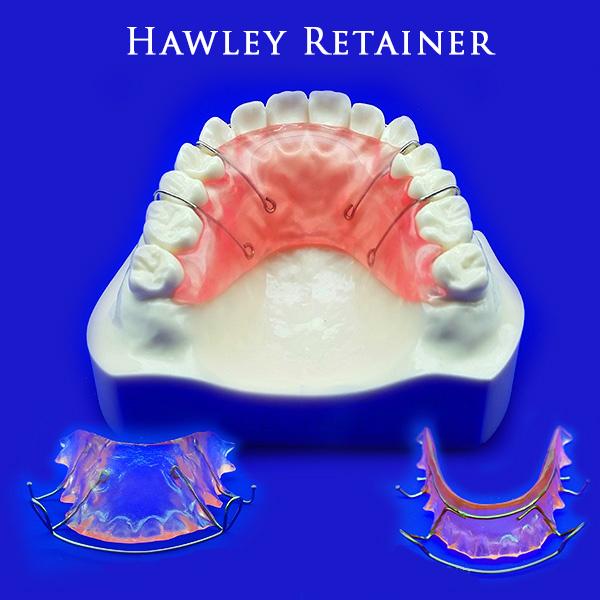 hawley-retainer-1