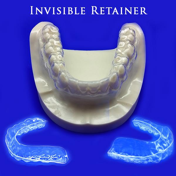 invisible-retainer-1-1